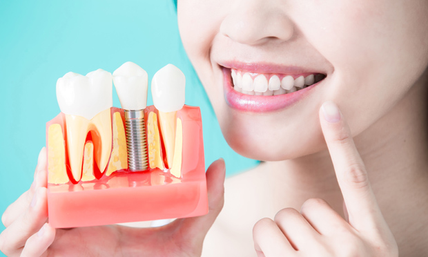 Dental Implants Are Small Posts That