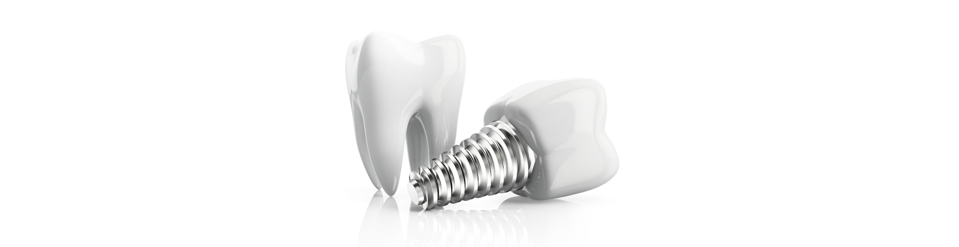 Dental Implants Can Be Used To Replace