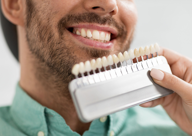 What Makes You A Candidate For Porcelain Veneers