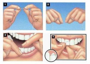 Children And Dental Flossing